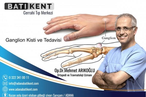 Ganglion Kisti ve Tedavisi
